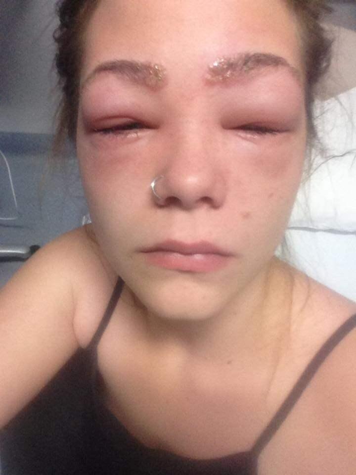 allergisk reaktion runt ögonen
