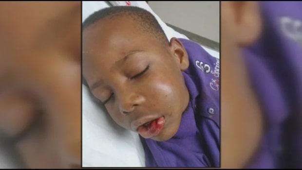 Sjuåringen kom hem från skolan med bruten käke och utslagna tänder