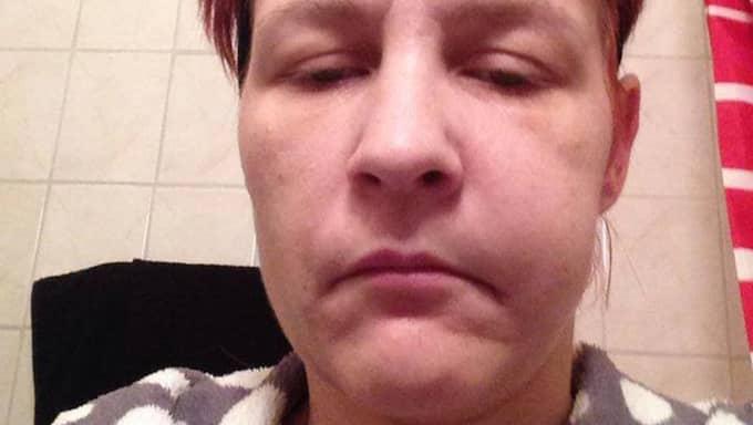 Maria Eketjäll, 37, när hon var inlagd på sjukhus vintern 2014 på grund av sin extrema tandvärk. Foto: Privat