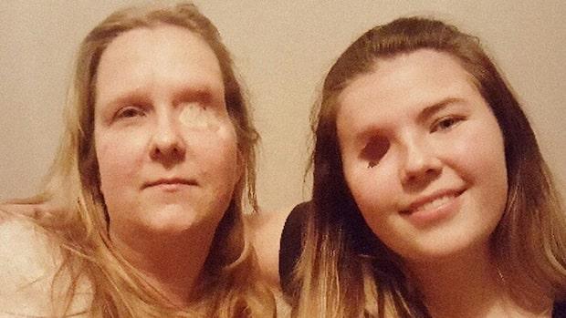 Linnea och Tina lever båda med ett öga