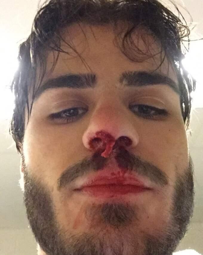 Bibic efter att ha fått en klubba i ansiktet mot Luleå Foto: Privat