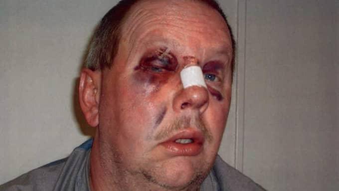 Anders Eklund efter misshandeln.