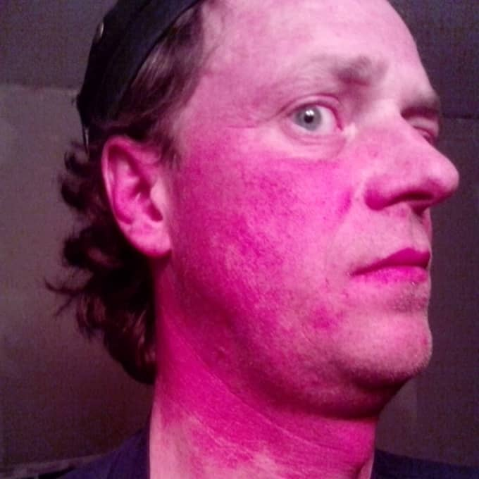 Jerker Olsson drabbades av en rad otäcka sjukdomssymtom efter en utgrävning i Toftanäs. Det visade sig att marken innehöll farliga ämnen. Nu