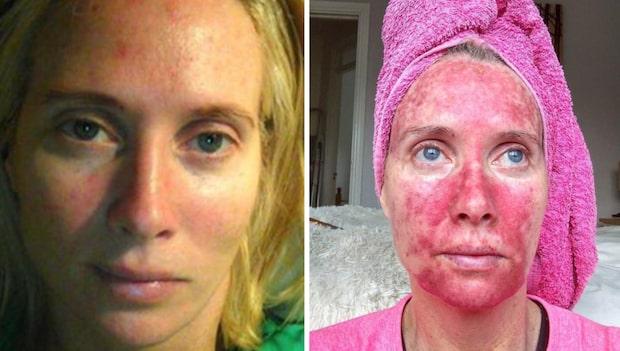 Margareth, 45, gjorde ett stort misstag i solen