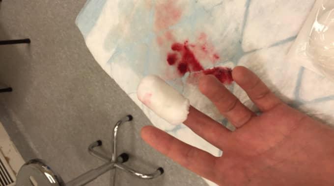 Pontus Tengbys finger. Foto: Privat.
