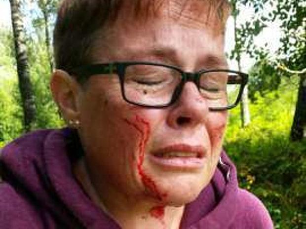 Camilla varnar kvinnor efter blodiga överfallet