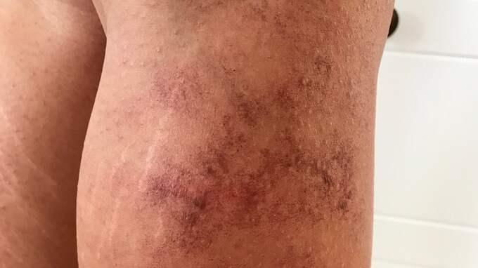 """""""Efter behandlingen när jag hade tagit på mig byxorna gjorde det så ont, jag kunde inte sitta still"""", berättar hon. Foto: Privat"""