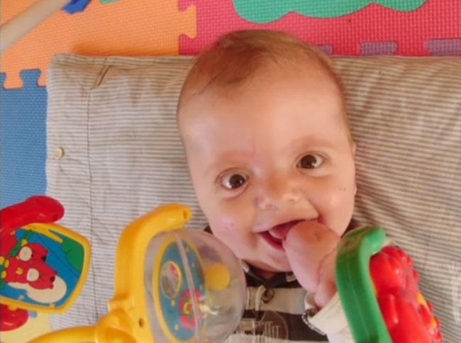 Barn som föds med Aperts syndrom har ofta sammanväxta fingrar och tår.