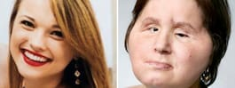 Katies starka ord efter ansiktstransplantationen