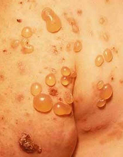 vätskefyllda utslag på kroppen