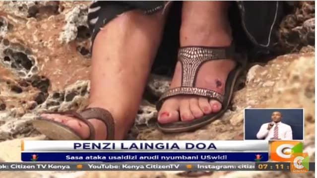 Anne har bland annat drabbats av bölder på fötterna. Foto: Citizen TV Kenya