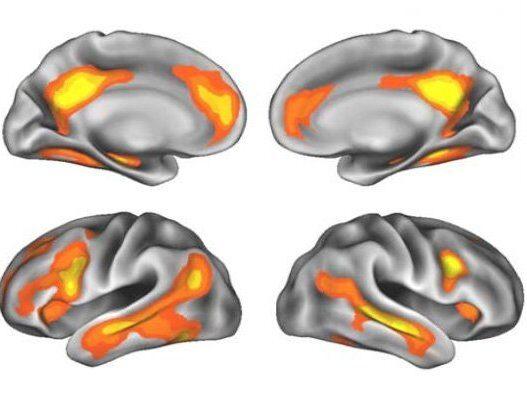 Hos de gravida kvinnorna i studien upptäcktes en märkbar minskning av grå hjärnsubstans - specifikt i de delar av hjärnan som är viktiga för att förstå andra människors behov.