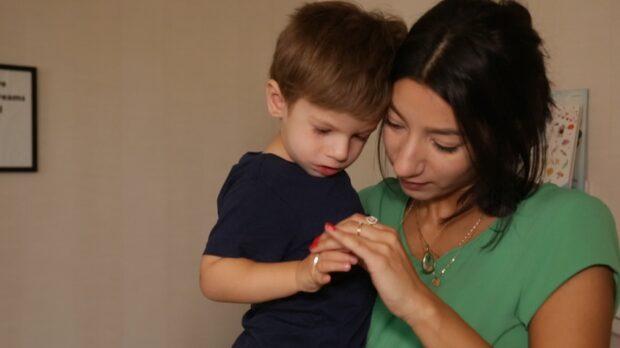 """Denice son lider av Möbius syndrom: """"Jag har skämts"""""""