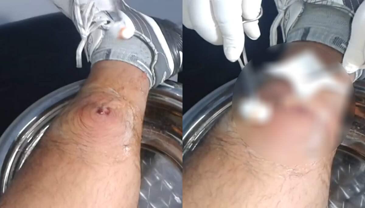 böld på magen människa