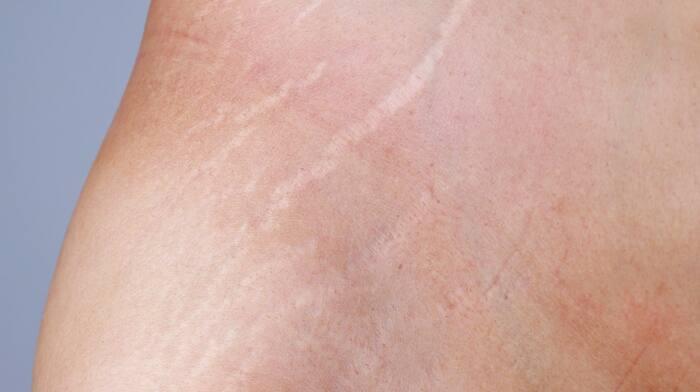 bristningar i huden
