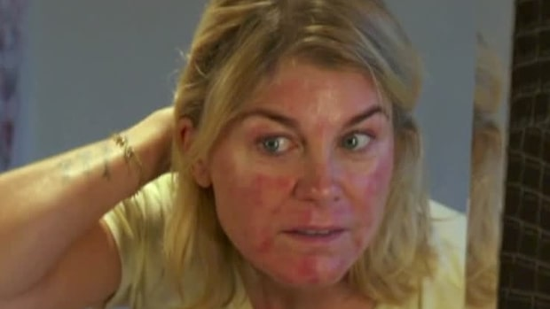 """Pernilla Wahlgren: """"Är brännskador i ansiktet"""""""