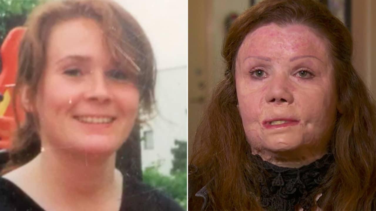 Kvinna tande eld pa lagenhet