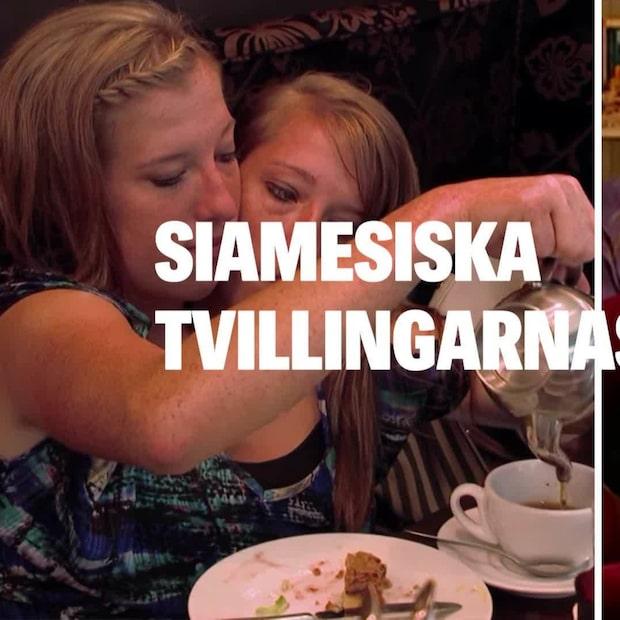 Siamesiska tvillingarnas nya liv – så ser de ut i dag