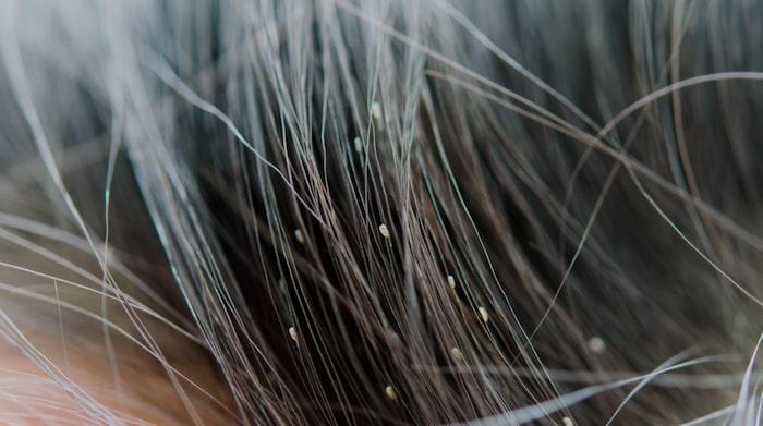 hur smittar hårlöss