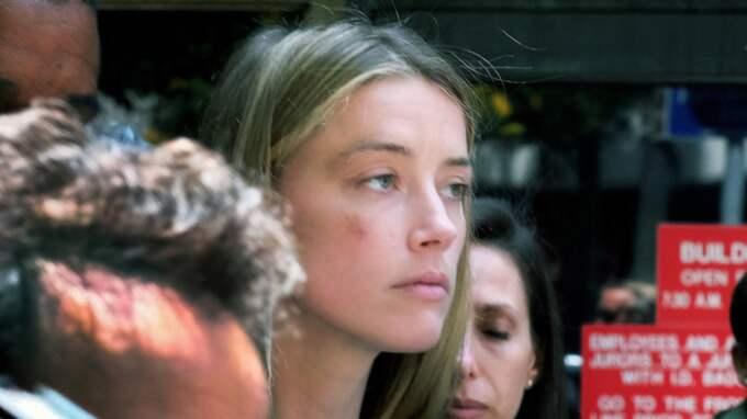 Amber Heard lämnar en domstol i Los Angeles med tydliga blåmärken i ansiktet Foto: Richard Vogel / AP TT NYHETSBYRÅN