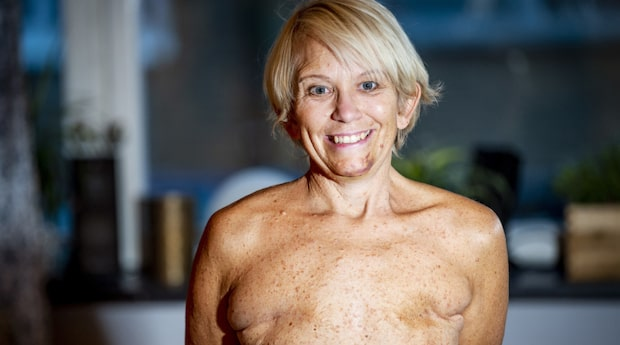 Therése vägrar implantat efter bröstcancer