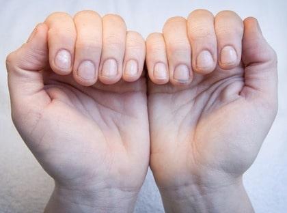 början till nagelsvamp