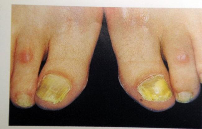 49a684da47c <span>Behandla nagelsvamp med huskurer så som klorin? Går det verkligen?  Läkaren