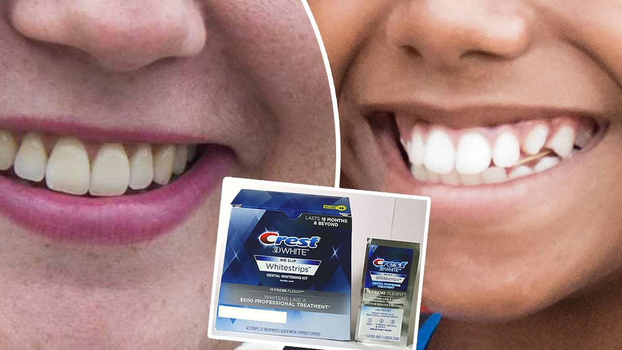 ilningar i tänderna efter tandblekning