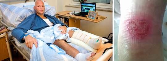 amputation. Efter en avbruten antibiotikabehandling kan Jonas Bergqvison, 36, tvingas amputera sitt ena ben. På onsdag opereras han på nytt. Foto: Ludvig Thunman