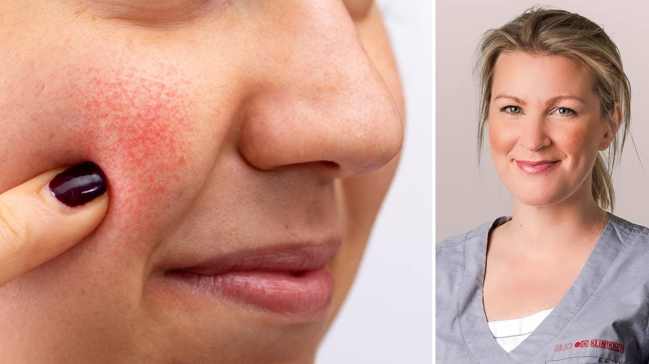 behandling mot rodnad i ansiktet