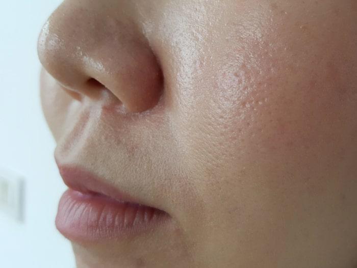 hur får man bort pormaskar på näsan