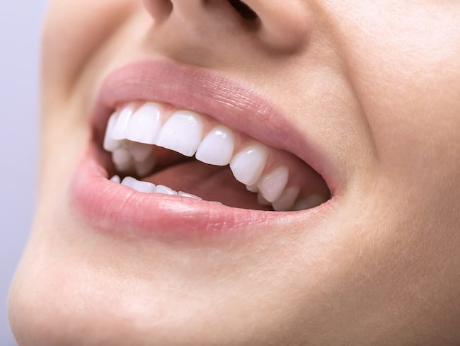 Det är viktigt att ta bort tandsten och ytliga missfärgningar innan man gör en tandblekning. Då blir nämligen effekten av själva blekmedlet mycket bättre.