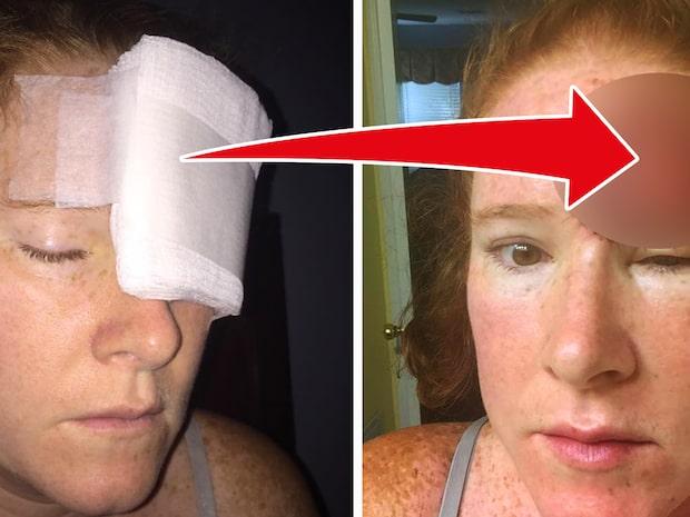 Mammans viktiga bilder på hudcancern