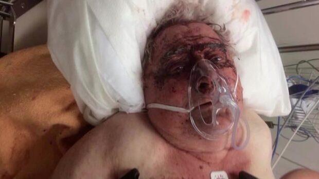 Ivar, 83, rånades brutalt i hemmet - tre åtalas
