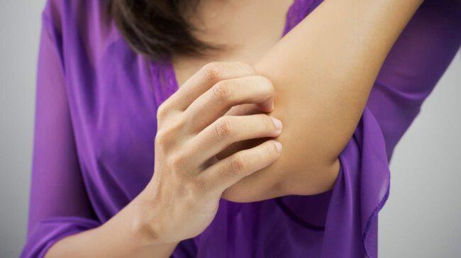 <span>Att få kliande, sårig och irriterad hud är inte roligt. Här finns 6 vanliga hudproblem och information hur du känner igen och behandlar dem.</span>
