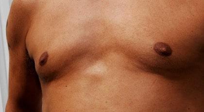 svullna ömma bröstkörtlar