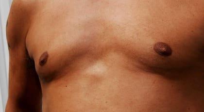 ömma bröstkörtlar hormoner
