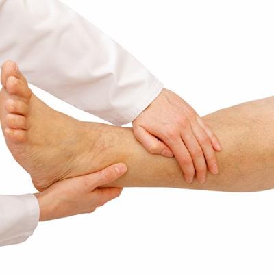 svullna ben efter träning