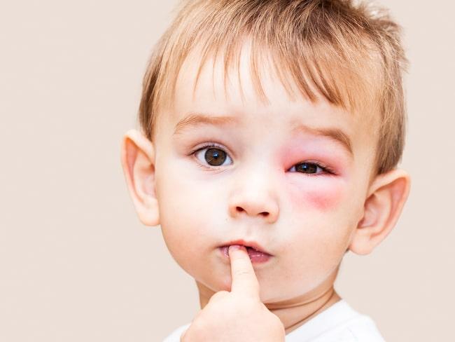 Att bli getingstucken är inte kul och kan göra jätteont. Dessutom kan man svälla upp, extra farligt blir det om man är allergisk.