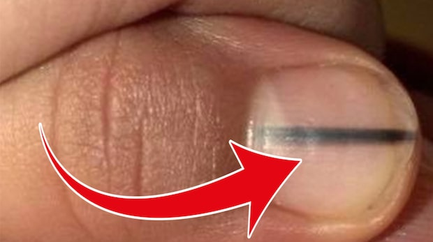 Kvinnan fick chockbeskedet på nagelsalongen