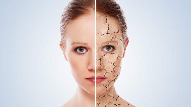 Torr luft, kyla och brist på sol gör huden vintertorr. De som redan har problem med eksem och hudsjukdomar som psoriasis drabbas ännu hårdare.
