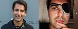 TV4-profilen plötsligt förlamad i halva ansiktet