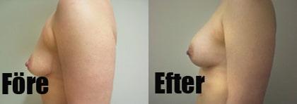 bröstlyft utan implantat
