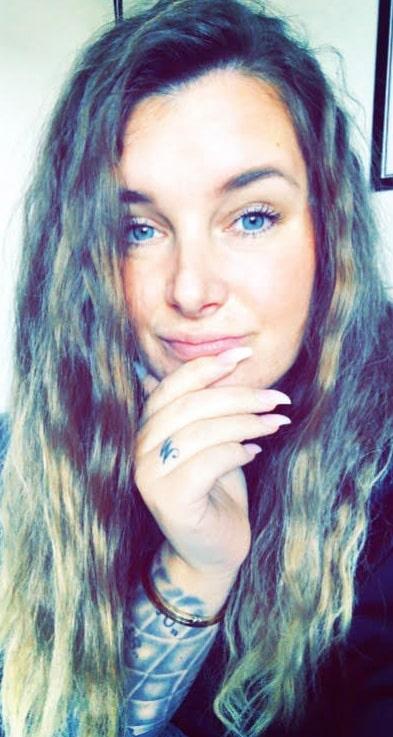 Rosanna Björkquist fick hidradenitis suppurativa i puberteten men det dröjde drygt 20 år innan hon fick rätt diagnos.