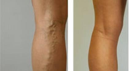 ytliga blodådror på benen