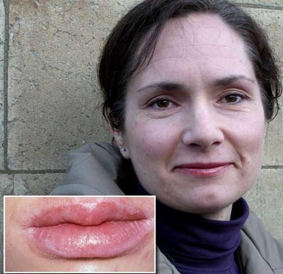 Blåsor på läpparna
