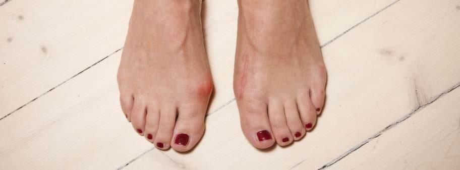 brosk i foten