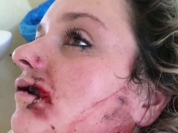 Bea, 26, blev kär i en kvinna – exet körde på henne